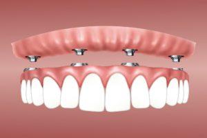 Implantatprothese